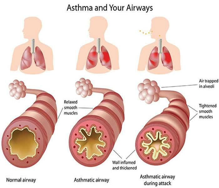 Asthma Explained